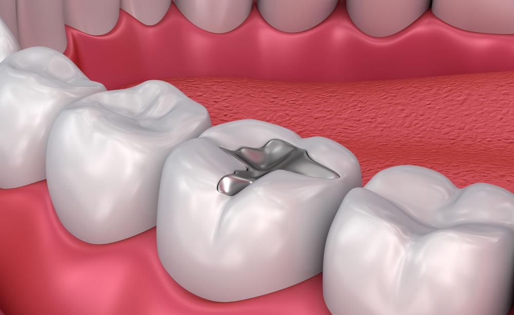 Rimozione protetta delle amalgame dentali