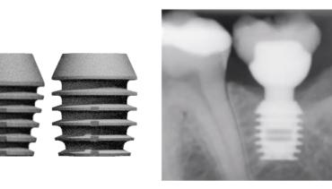 Implantologia minimamente invasiva
