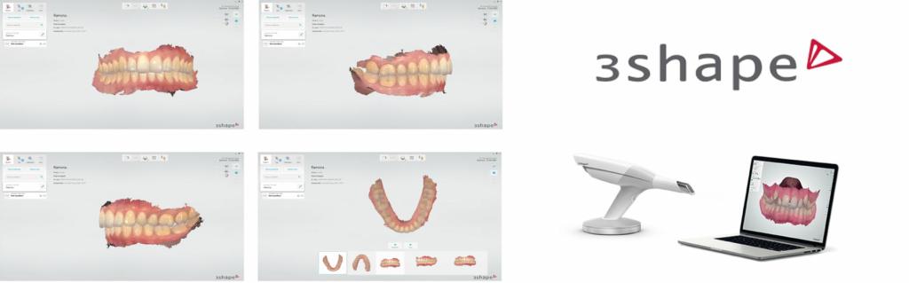 3d Shape - Digitalizzazione delle impronte dentali - Studio Odontoiatrico dott. De Luca Giancarlo