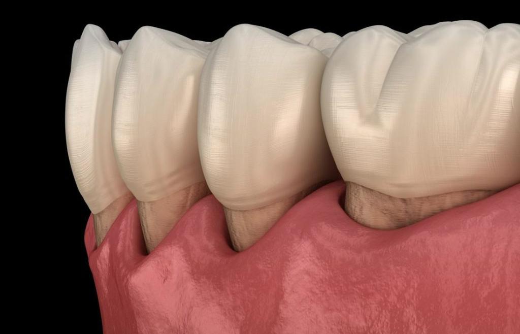 Cura della malattia parodontale