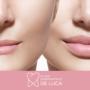 Filler labbra: una rivoluzione per le tue labbra